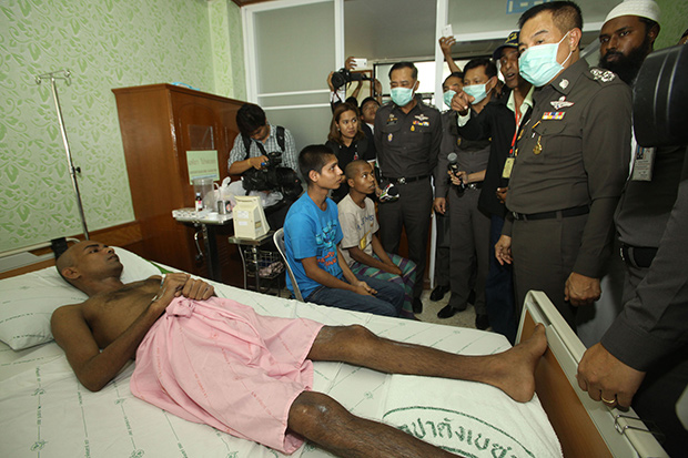 National police chief Somyot Pumpunmuang (right) visits a Rohingya migrant who survived and was rescued from a human-trafficking camp at a hospital in Songkhla province on Monday. (Photo by Pornprom Satrabhaya)
