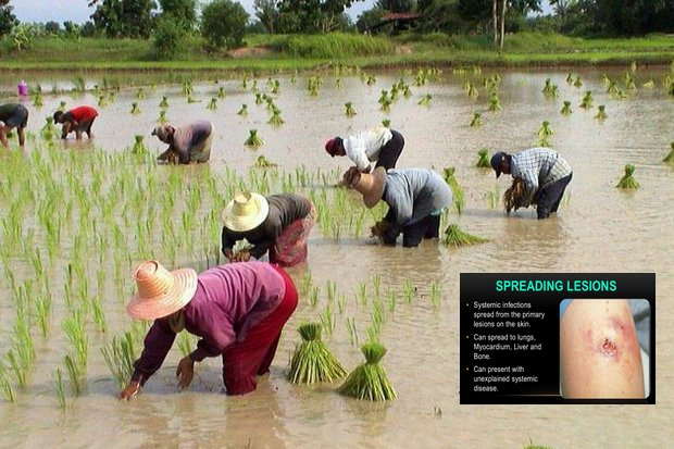 Medical authorities note melioidosis exists around the world in countries near the equator, but there is special danger for rice farmers of the Thai Northeast. (Creative Commons, Wikipedia)