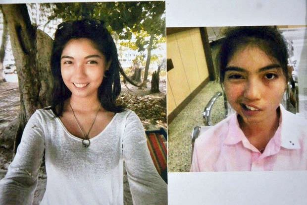 These photos show Naruedee Jodsanthia, 17, before (left) and after. She says the damage was caused by a ceramic cup thrown by her physical education teacher, which hit her in the left eyebrow, damaging the nerve. (Photo by Pongpat Wongyala)