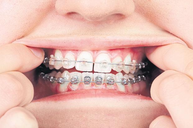 Teeth with orthodontic brackets. PHOTOS: 123RF