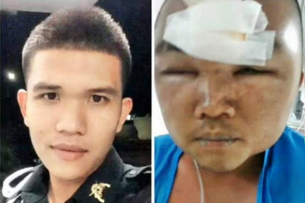 Before and after photos of Pvt Yutthakinun