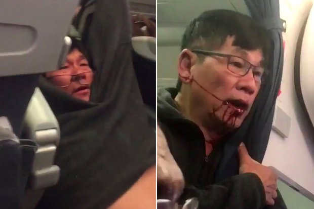 A man believed to be Dr David Dao of Kentucky was attacked, knocked down, given a bleeding lip and dragged by a Chicago policeman - who has been placed on administrative leave. (Photos via Twitter videos)