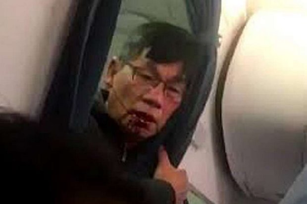 Dr David Dao, whose beating on board United Airlines sparked worldwide attention and even a stock selloff for the obtuse, stupid carrier. (Photo via Twitter videos)