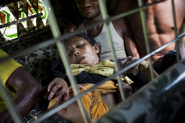 An injured elderly woman who 'stepped on a land mine' is rushed to hospital by her relatives on an auto-rickshaw near the border town of Kutupalong, Bangladesh. The explosion blew off the woman's right leg while she was trying to cross into Bangladesh. (AP photo)