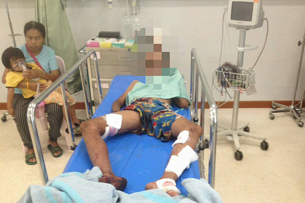 An injured 13-year-old boy from Myanmar receives treatment at the Phop Phra Hospital in Tak after stepping on a landmine in a border area. An 8-year-old Thai boy died in the same incident. (Photo by Assawin Pinitwong)