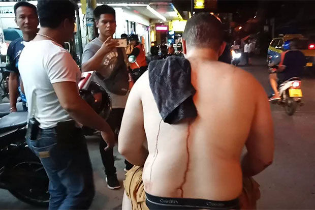 A Lebanese tourist, 29, sustains a knife wound following a violent brawl with two Thai men in Pattaya, Chon Buri, in the early hours of Saturday. (Photo by Chaiyot Pupattanapong)