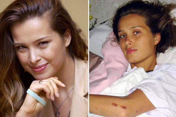 Czech Supermodel Petra Nemcova 39 Who Was Injured During Dec 26 Tsunami 14 Years Ago Is Looking To Contact Three Thai People One Saved Her Life