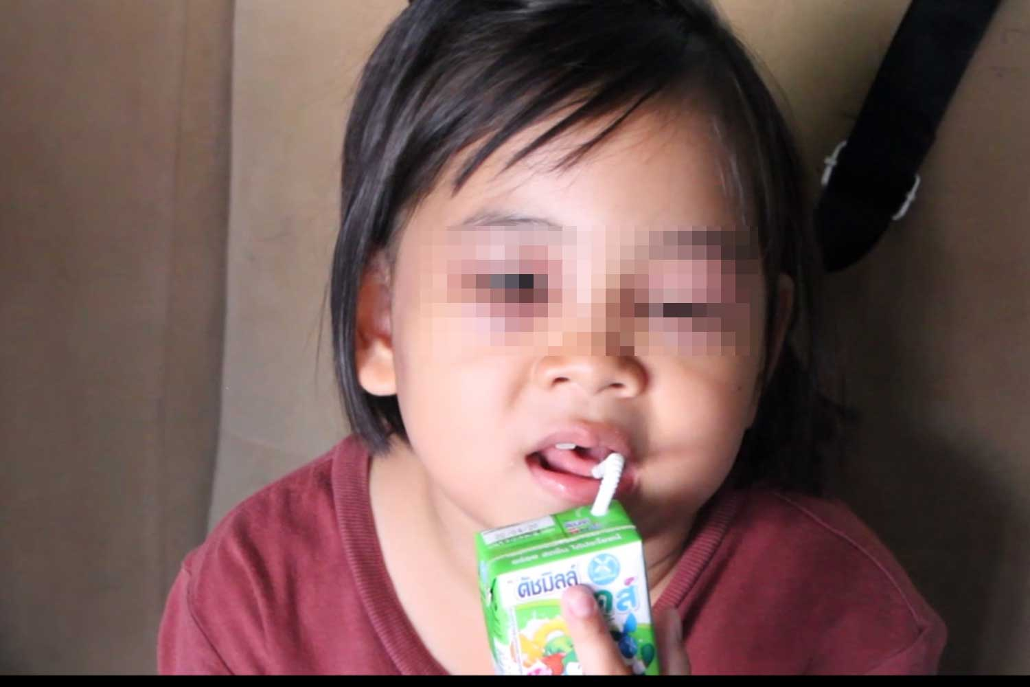 A Pattaya girl suffered facial swelling after being struck by her teacher for being too slow to answer questions, her mother says. (Photo by Chaiyot Pupattanapong)