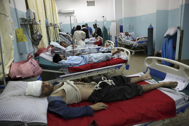Wounded men receive treatment in a hospital after a large explosion in Kabul, Afghanistan, on Monday. (AP photo)