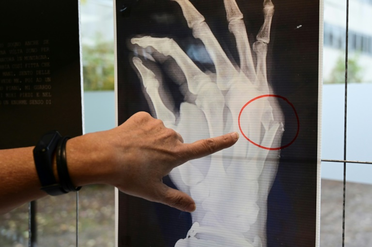 A Milan hospital is displayingX-rays from victims of domestic violence who have passed through the doors of the facility seeking help.
