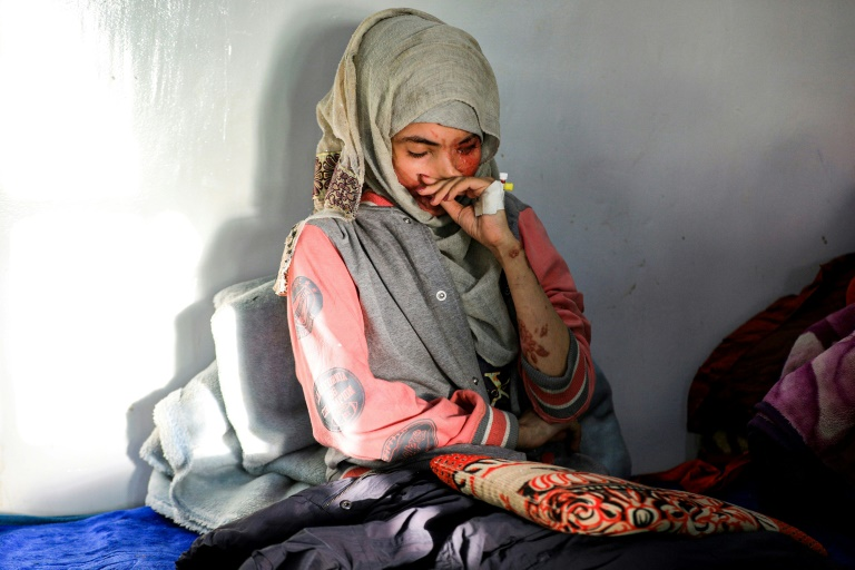 Al-Anoud Hussain Sheryan, a 19-year-old girl disfigured in an acid attack by her husband, at a hospital where she is undergoing treatment in Yemen's capital Sanaa.