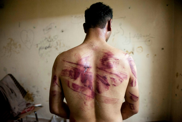 A Syrian man shows torture marks on his back after he was released from regime forces in the northern city of Aleppo.