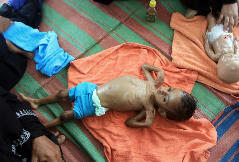 Tens of thousands of people have been killed and millions pushed to the brink of famine in the six-year-old Yemen conflict, which the UN describes as the world's worst humanitarian crisis.