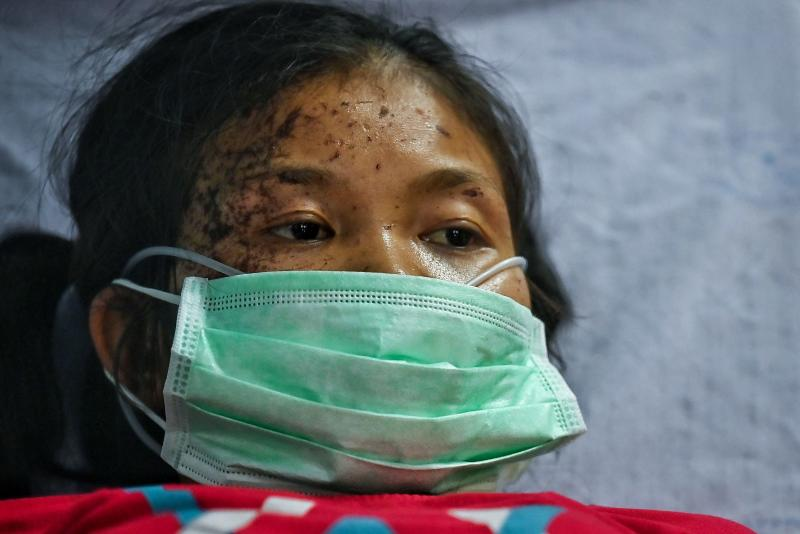 An injured Myanmar refugee is attended by Thai doctors at the Sop Moei Hospital in Mae Hong Son province on Tuesday, after crossing the Salween River at the Thailand-Myanmar border following Myanmar military bombings in Karen state. (AFP photo)
