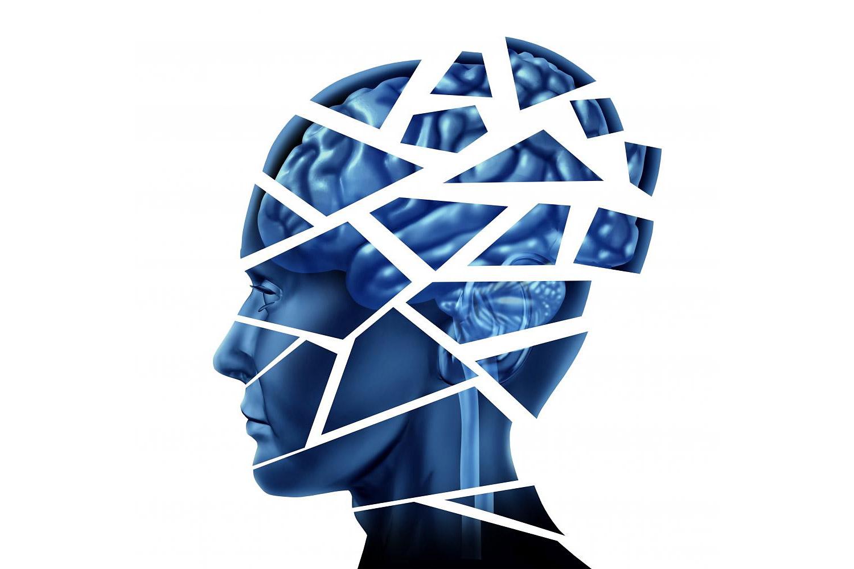 Neurocognitive disorder is more of an umbrella term than diagnosis